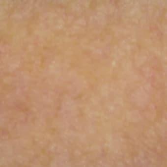ベージュブラウンの肌