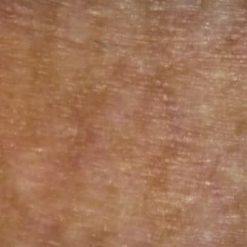グレーの肌