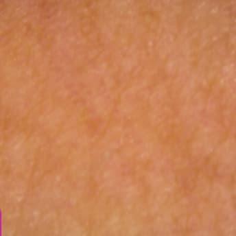 赤黒い色の肌